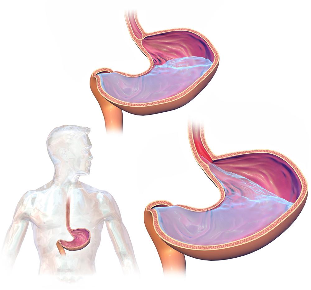Afbeeldingsresultaat voor maagklepje tips reflux